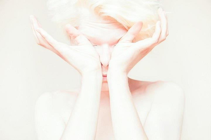 Igor Klepnev - Creamy Beauty of Albinism